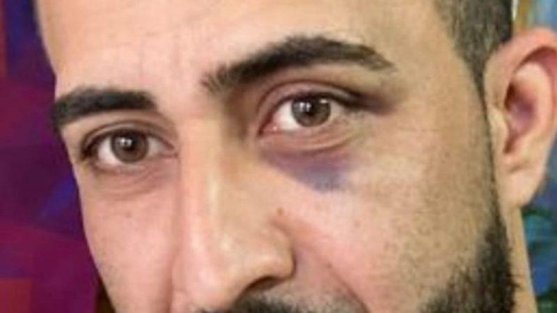 Sirijac Amar sa modricom